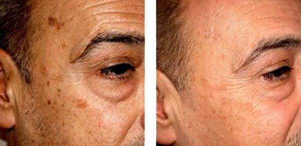 مراقبت و پاکسازی پوست